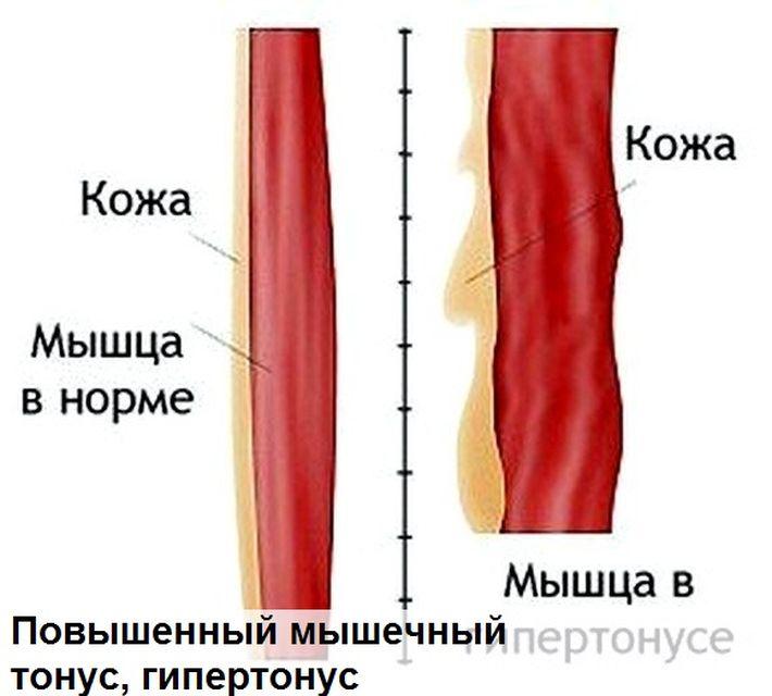 Тонус в мышцах у взрослого