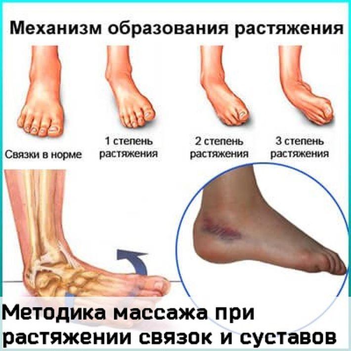 Можно ли делать массаж при растяжении связок коленного сустава